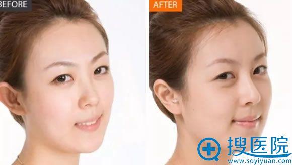 爱贝芙注射隆鼻前后效果对比照片