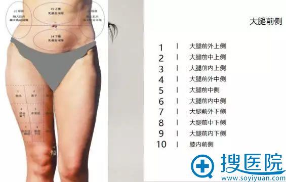自体脂肪移植的吸脂区划分图