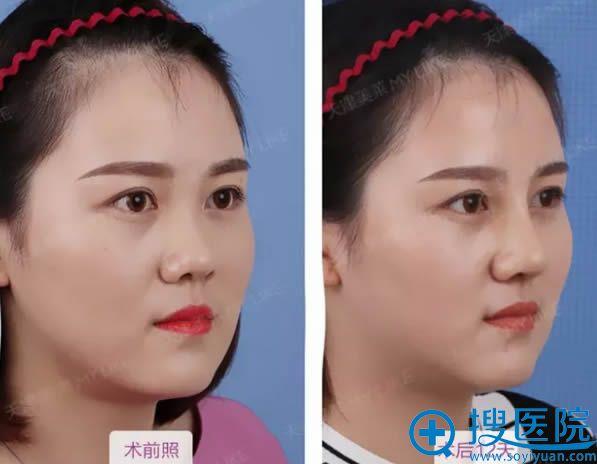 天津美莱综合隆鼻术后15天前后对比图