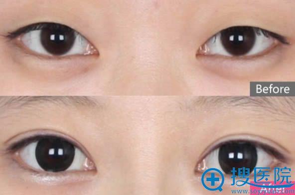 杜园园博士双眼皮案例效果图