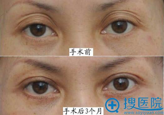 杜园园双眼皮修复案例图