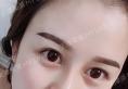 天津美莱于双全隆鼻案例:天姿定制美鼻一个月恢复过程