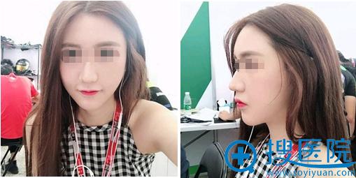 武汉爱美汇瞿敏面部吸脂瘦脸1个月照片