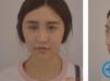 武汉洪山爱美汇瞿敏医生面部吸脂瘦脸术后2个月恢复过程图分享