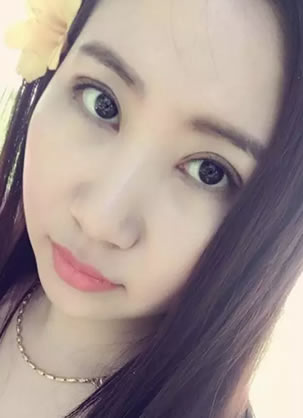 在山东省立医院找薛峰做双眼皮快一个月啦 给姐妹们分享下