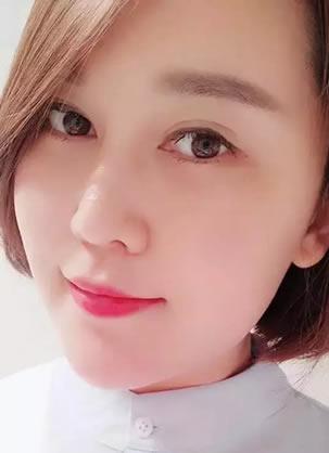 成都恒博医院活颜精雕立体美塑新技术发布 36岁彭医生体验视频