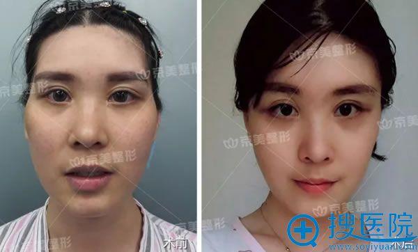 北京京美自体脂肪填充太阳穴案例