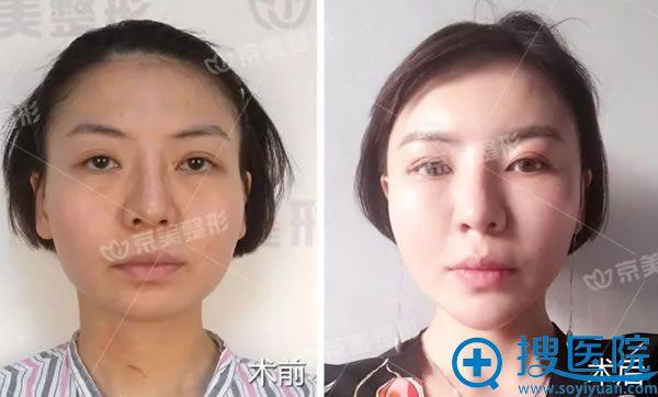北京京美面颊填充前后效果图