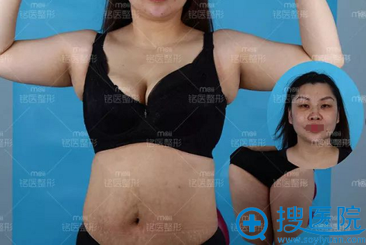 深圳铭医全身吸脂+双眼皮手术术前照