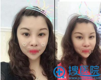 深圳铭医眼综合术后2个月恢复效果