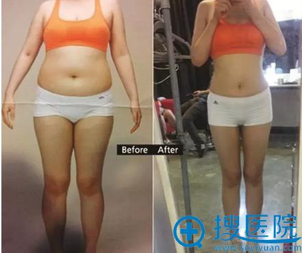 韩国巴诺巴奇全身吸脂术前术后对比