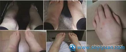 韩国巴诺巴奇全身吸脂术后浮肿情况