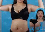 深圳铭医全身吸脂真人案例:四十多的女人的蜕变新生