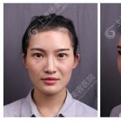 上海脂肪填充谁做的好?上海华美谢卫国脂肪填充1个月恢复过程