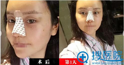 鼻综合+自体脂肪面部填充术后即刻