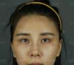 【日记】分享我在上海首尔丽格做全脸自体脂肪填充25天恢复照片