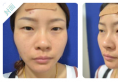 看我花8800元找上海宏康医院李长江做的切开双眼皮效果怎么样