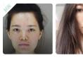 看我花45000元找上海九院韦敏教授做的膨体隆鼻效果怎么样