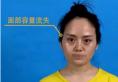 四川米兰柏羽张槿旭院长鼻综合+自体脂肪面部填充蜕变视频