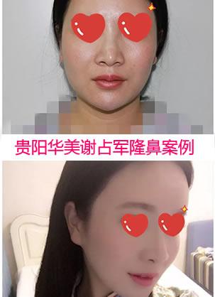 贵阳华美整形医院谢占军隆鼻效果怎么样 线雕隆鼻恢复全过程