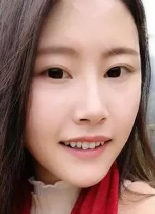 天津美莱医院罗金超改脸型效果怎么样 下颌角手术100天成功换脸