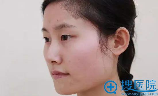 天津美莱下颌角整形前侧面照