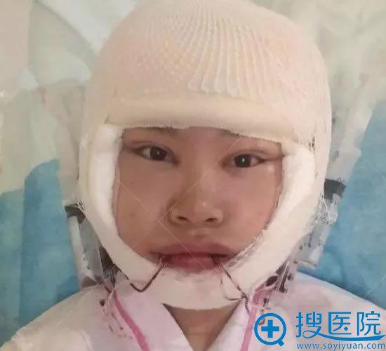 天津美莱下颌角手术第1天