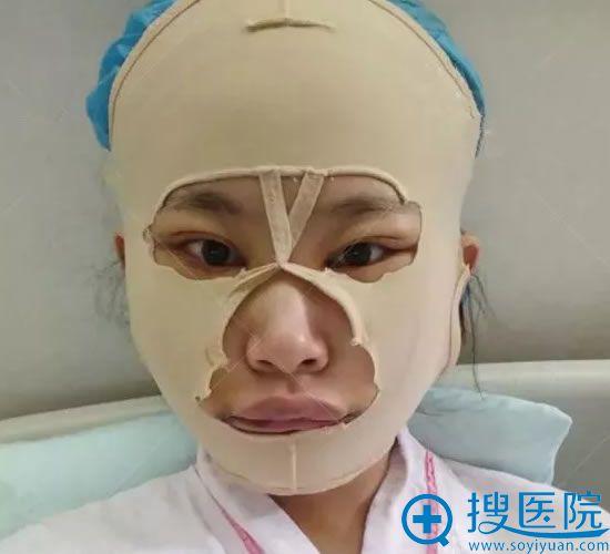 天津美莱改脸型手术第5天