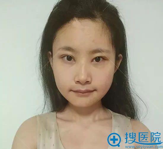 在天津美莱改脸型第30天
