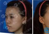 福州台江整形医院虞守辉玻尿酸填充全脸术前术后对比照片分享