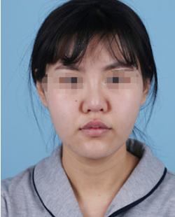 西安美莱王洪院长耳软骨鼻综合术后四个月真实效果反馈