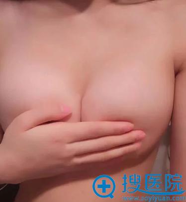 赵雅雄10分钟极速丰胸手术效果