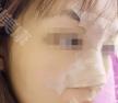 贵阳利美康医院张智毅进口膨体隆鼻+耳软骨垫鼻尖蜕变案例