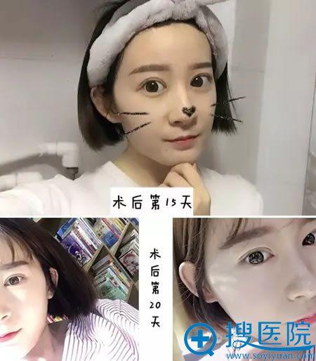 双眼皮手术15-20天恢复图