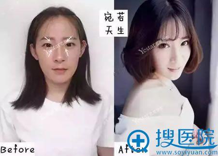 北京艺星双眼皮术前术后效果对比图