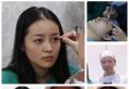 看南京华美整形医院王小林主任给我做的双眼皮案例效果好不好