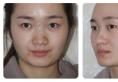 西安谁做鼻子做的好?施尔琦苏鹏院长鼻综合隆鼻案例告诉你答案