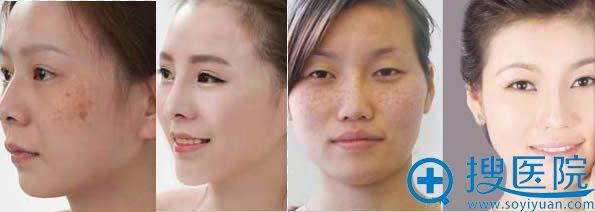 广州广大激光祛斑前后对比效果