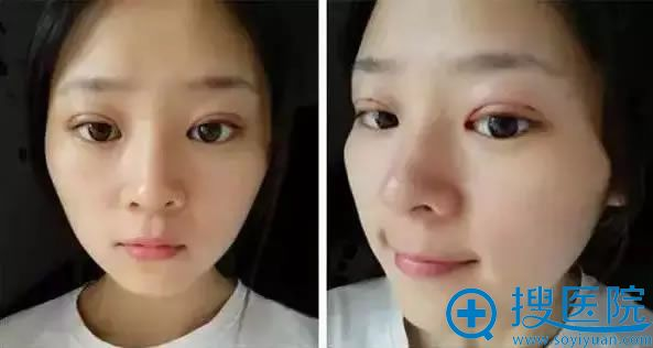 做双眼皮和隆鼻术后第5天