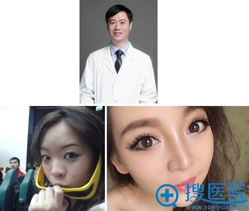 八大处双眼皮医生靳小雷及代表案例