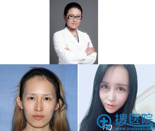 八大处双眼皮医生王太玲及案例