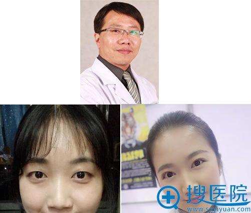 八大处双眼皮医生杨晓楠及案例