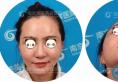 公开我在南京华美找沈正宇做鼻综合术后2个月的恢复效果对比图