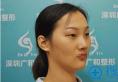 深圳广和整形谢文文双眼皮手术过程及恢复情况全纪录