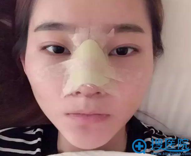 太原丽都鼻综合整形手术第2天