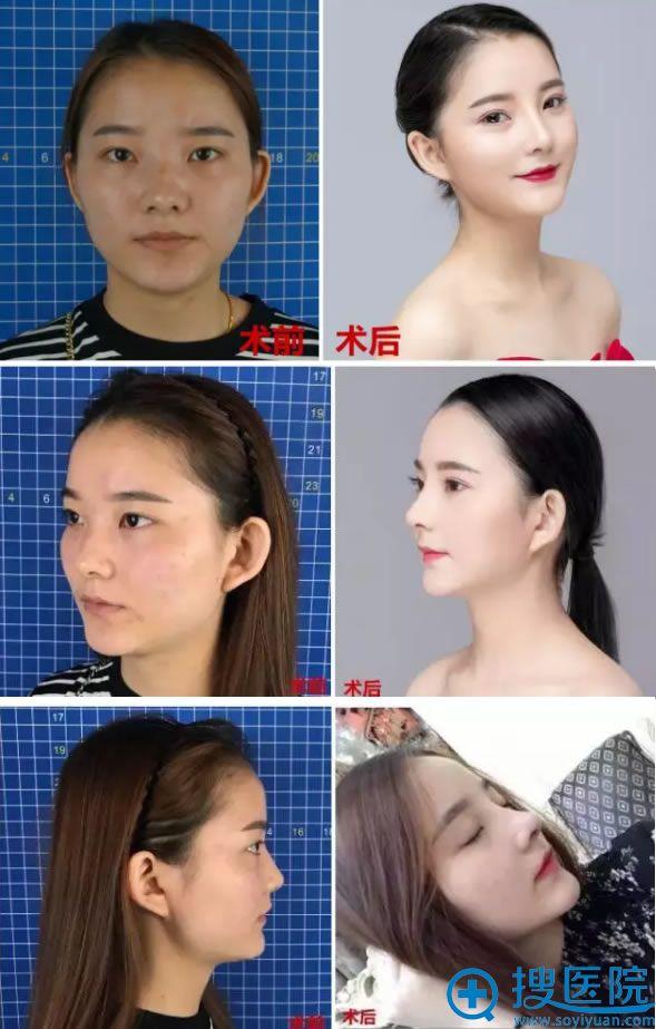 鼻综合整形手术前后效果对比图