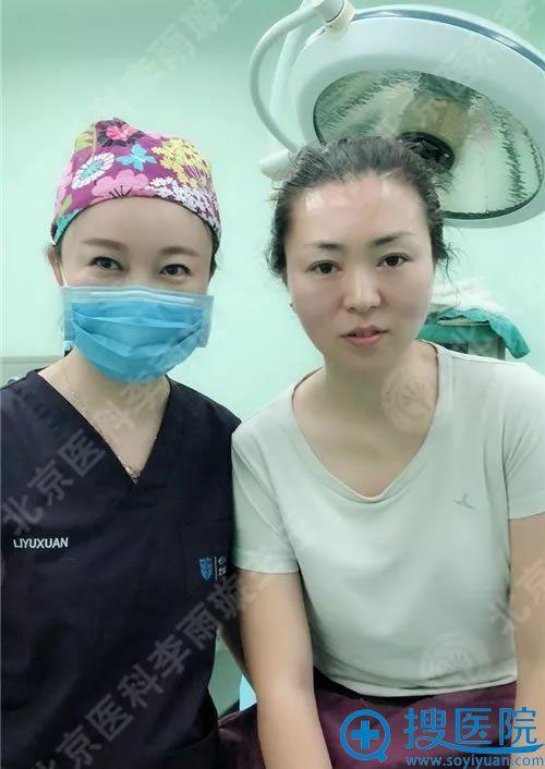 面部线雕手术即刻效果图