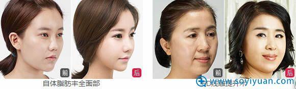 自体脂肪填充全脸和线雕案例