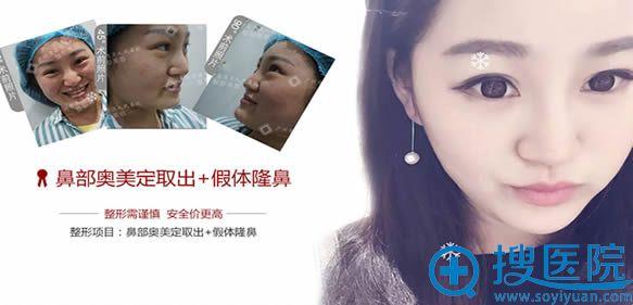 荔湾区人民医院取除鼻部奥美定和假体隆鼻案例图