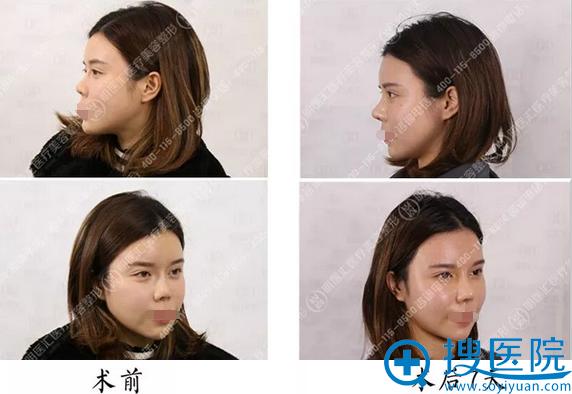 李耀宇进口硅胶+肋软骨鼻综合术后7天恢复对比